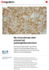 Ny immunterapi øker presset på patologilaboratoriene